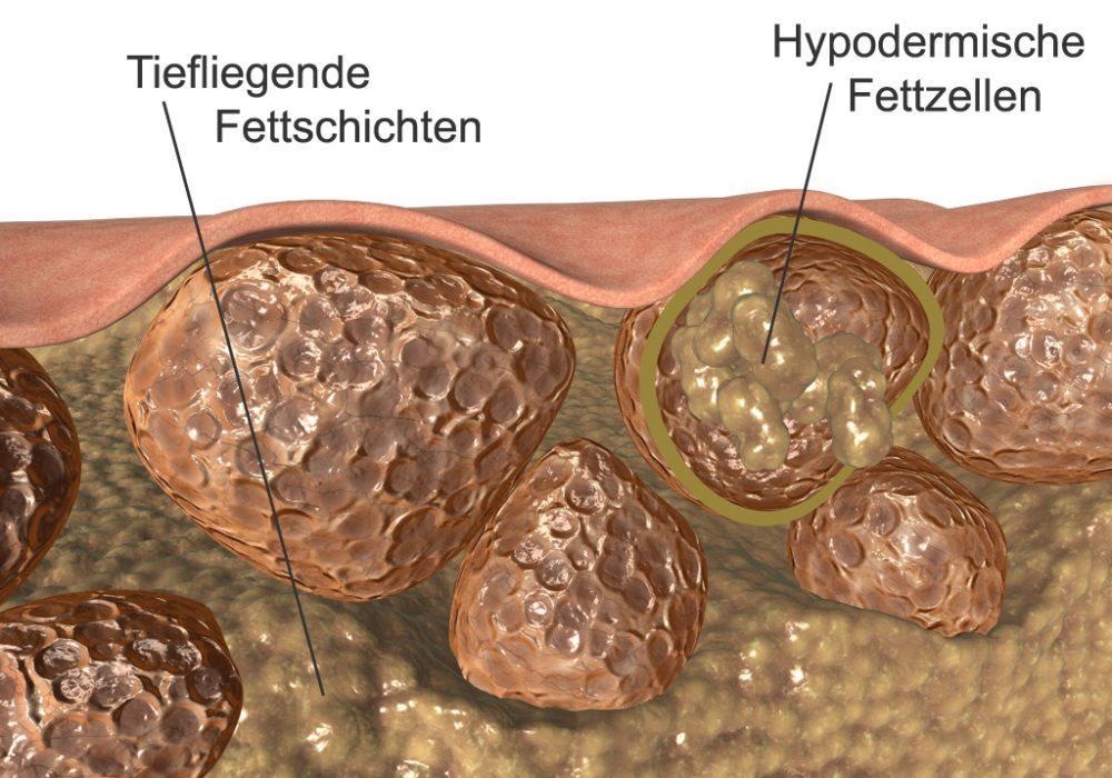 Querschnitt durch die Haut bei Cellulite (Bild: SUNBEAM VISION, Wikimedia, CC)