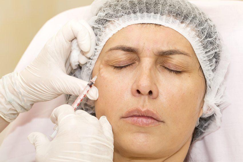 Unterspritzung von Falten mit Botox (Bild: Lestertair / Shutterstock.com)