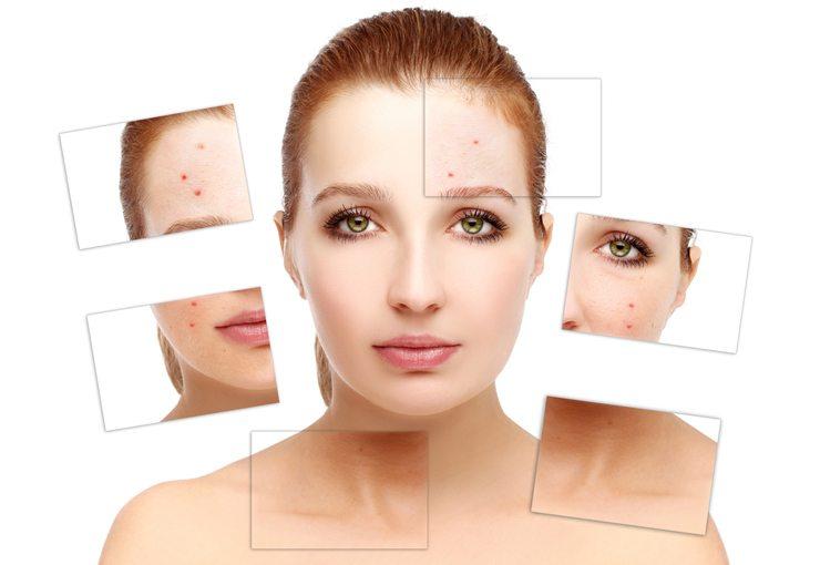 Fettige Haut wirkt grossporig und neigt zu Mitessern und kleineren Pickelchen (Bild: Accord / Shutterstock.com)