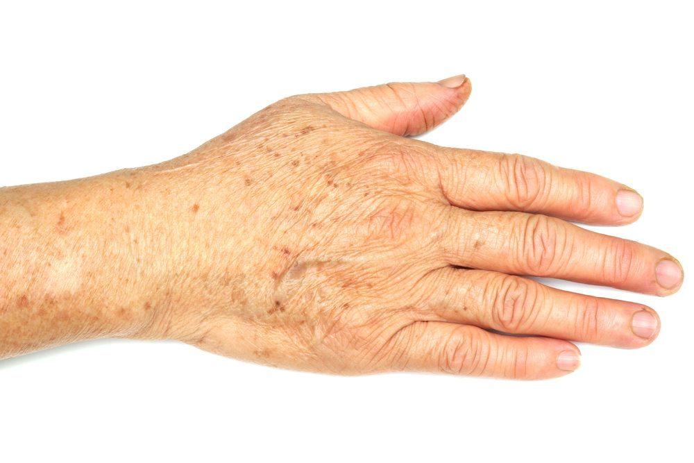 pigmentflecken arm