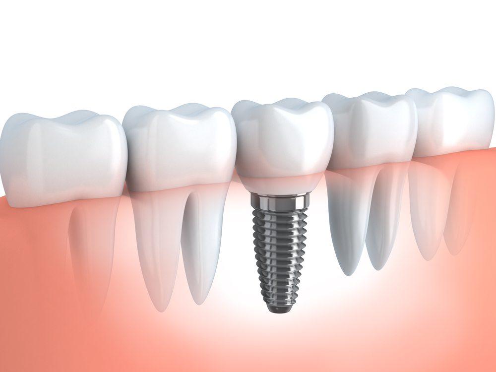 Zahnimplantate können nur bei gesunder Mundflora eingesetzt werden. (Bild: Vladru / Shutterstock.com)