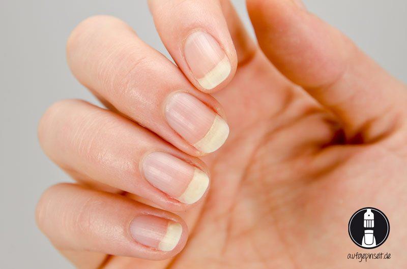 Nagel mit zurückgeschobener Nagelhaut und von Fett entfernt (Bild: © Andrea von aufgepinselt.de)