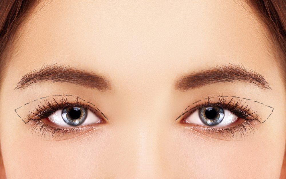 Viele Frauen empfinden Schlupflider als ästhetischen Makel. (Bild: Accord / Shutterstock.com)