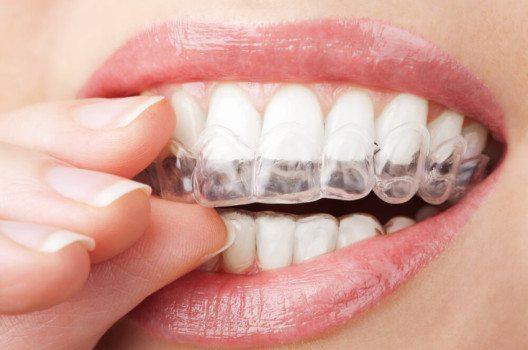 Durch  Bleaching  lassen  sich  die  Zähne  um  eine  bis  zwei  Stufen  der  Zahnfarbskala  aufhellen.  (Bild: Olga Miltsova / Shutterstock.com)
