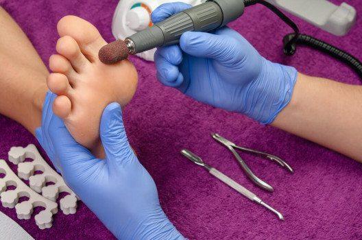 Hornhautentfernung ist die Grundlage der richtigen Fusspflege. (Bild: asu / Shutterstock.com)