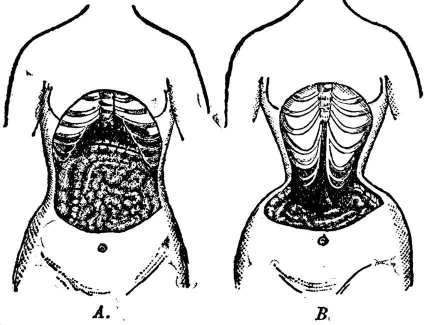 Korsett – einfach zur schlanken Taille mit hohem Gesundheitsrisiko. (Bild: Everett Historical – shutterstock.com)