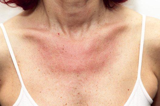 Bei der phototoxischen Reaktion handelt sich um photosensibilisierende Substanzen, die zu einer erhöhten Sonnenempfindlichkeit der Haut führen.  (Bild: Fineart1 – shutterstock.com)