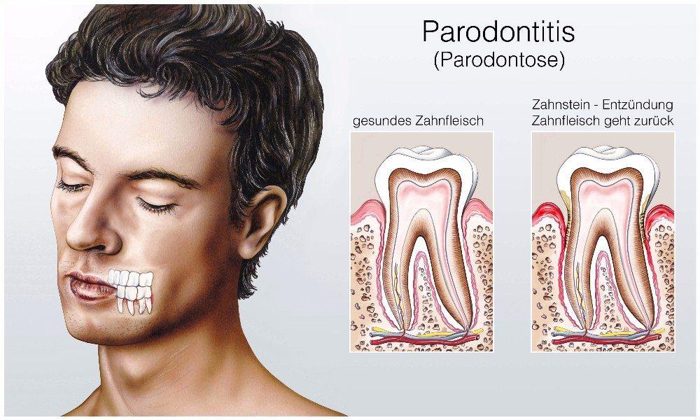 Eine Parodontitis wird durch aggressive Bakterien ausgelöst. (Bild: © Henrie - fotolia.com)
