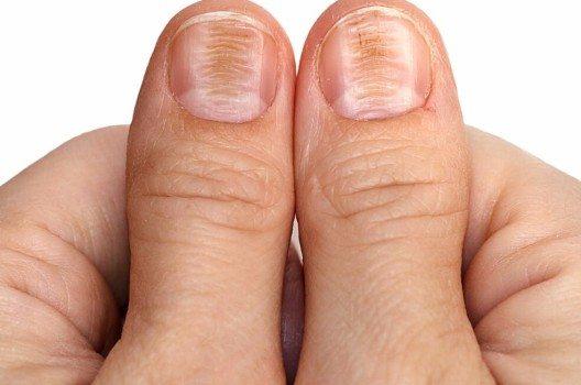 Querrillen sind hingegen meistens eine Folge einer Erkrankung. (Bild: © Aisylu Ahmadieva - shutterstock.com)