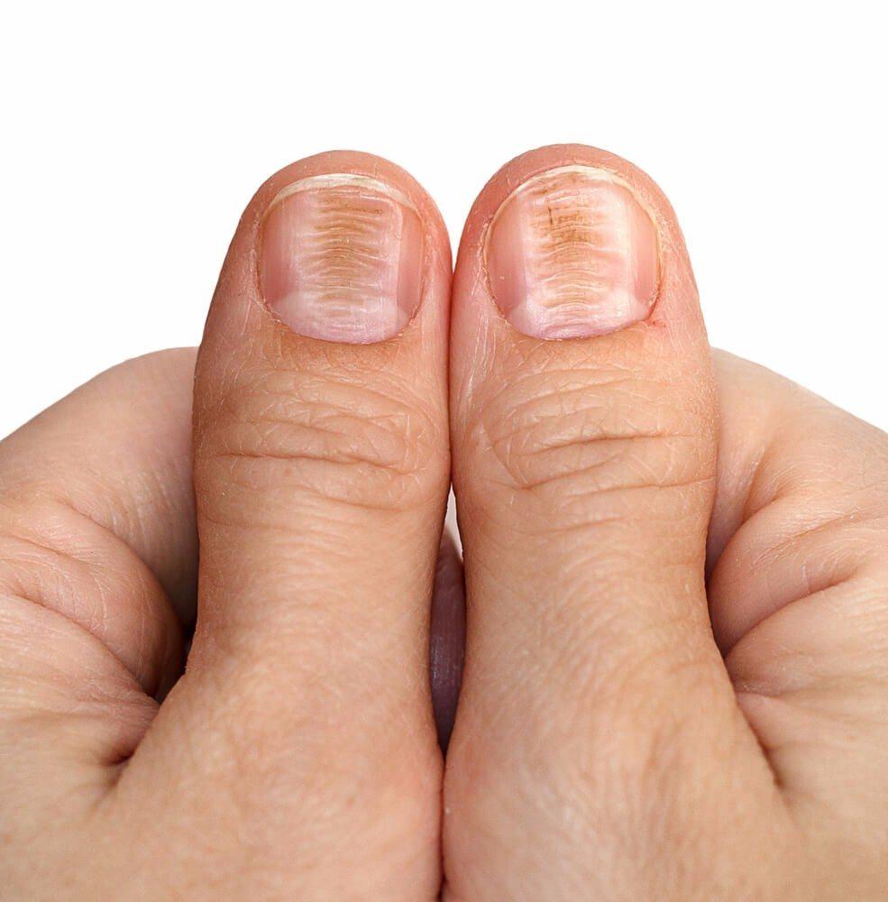Wie Du Anhand Deiner Fingernagel Den Zustand Deiner Gesundheit