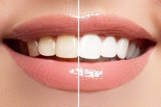 Das In-Office-Bleaching findet in einer oder mehreren Sitzungen direkt in der Zahnarztpraxis statt. (Bild: © Re_sky - shutterstock.com)