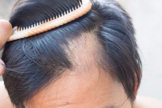 Bei kreisrundem und diffusem Haarausfall ist die Sachlage nicht so eindeutig, da die Ursachen zu vielgestaltig sind. (Bild: © The Sun photo - shutterstock.com)