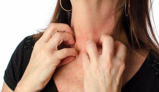 Wenn die Haut juckt und Rötungen, Schwellung und Bläschenbildung auftreten, spricht man von einer atopischen Dermatitis. (Bild: © thodonal88 - shutterstock.com)
