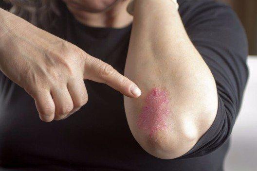 Wie die Neurodermitis tritt auch die Schuppenflechte in Schüben auf und wird durch eine Überreaktion des Immunsystems ausgelöst. (Bild: © Hriana - shutterstock.com)