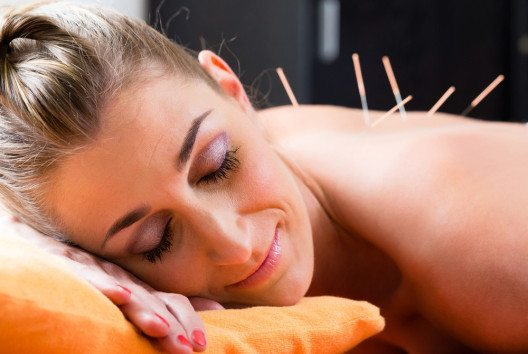 Akupunktur (Bild: Kzenon – Shutterstock.com)