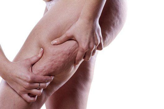 Wie wirken die Anti-Cellulite-Produkte eigentlich? (Bild: Vladimir Gjorgiev – Shutterstock.com)