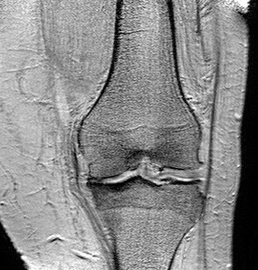 Arthrose ist weltweit die häufigste Gelenkerkrankung. (Bild: © User:Scuba-limp, Wikimedia, CC BY-SA 3.0)