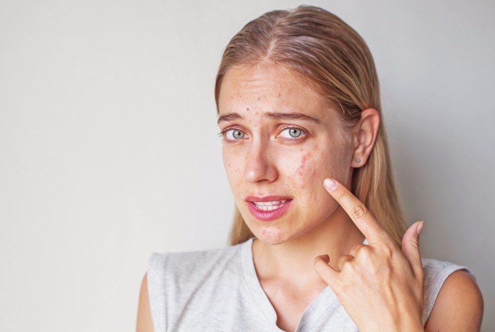 Akne kann auch bei Erwachsenen auftreten. (Bild: © Mila Supinskaya - shutterstock.com)