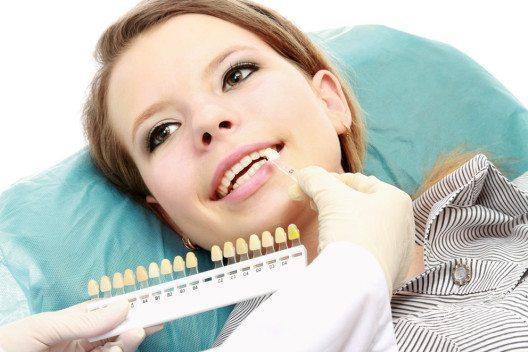 Seit Jahren liegt das Aufhellen der Zähne im Trend. (Bild: sheff – Shutterstock.com)