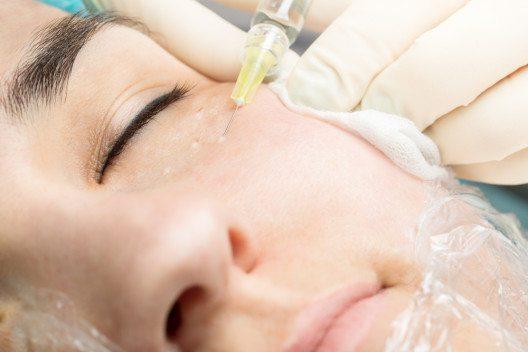 Echte biorevitalization mit Hyaluronsäure Behandlung. Reduziert unerwünschte Zeichen der Hautalterung. (Bild: © Fly_dragonfly)