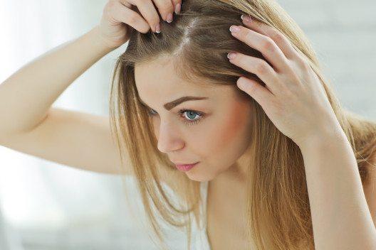 Stress oder hormonelles Ungleichgewicht sind Faktoren die Schuppen formen. (Bild: © Nina Buday - shutterstock.com)