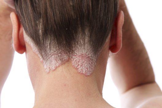 Auch die Kopfhaut kann auf bestimmte Einflüsse unterschiedlich reagieren. (Bild: Christine Langer-Püschel – istockphoto.com)